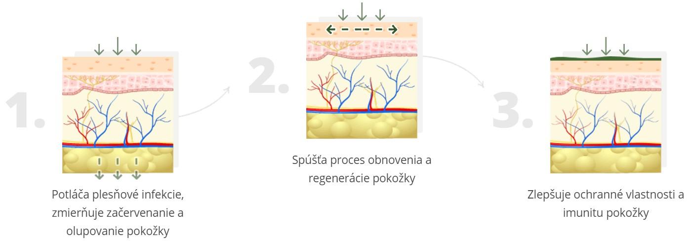 Gél Fungonis - to je gél s trojitým účinkom proti plesňovým infekciám