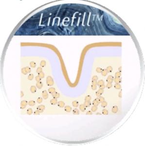 LINEFILL