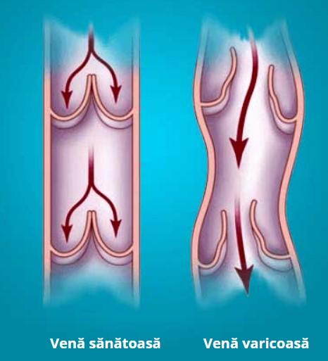 Účinky krému Varydex
